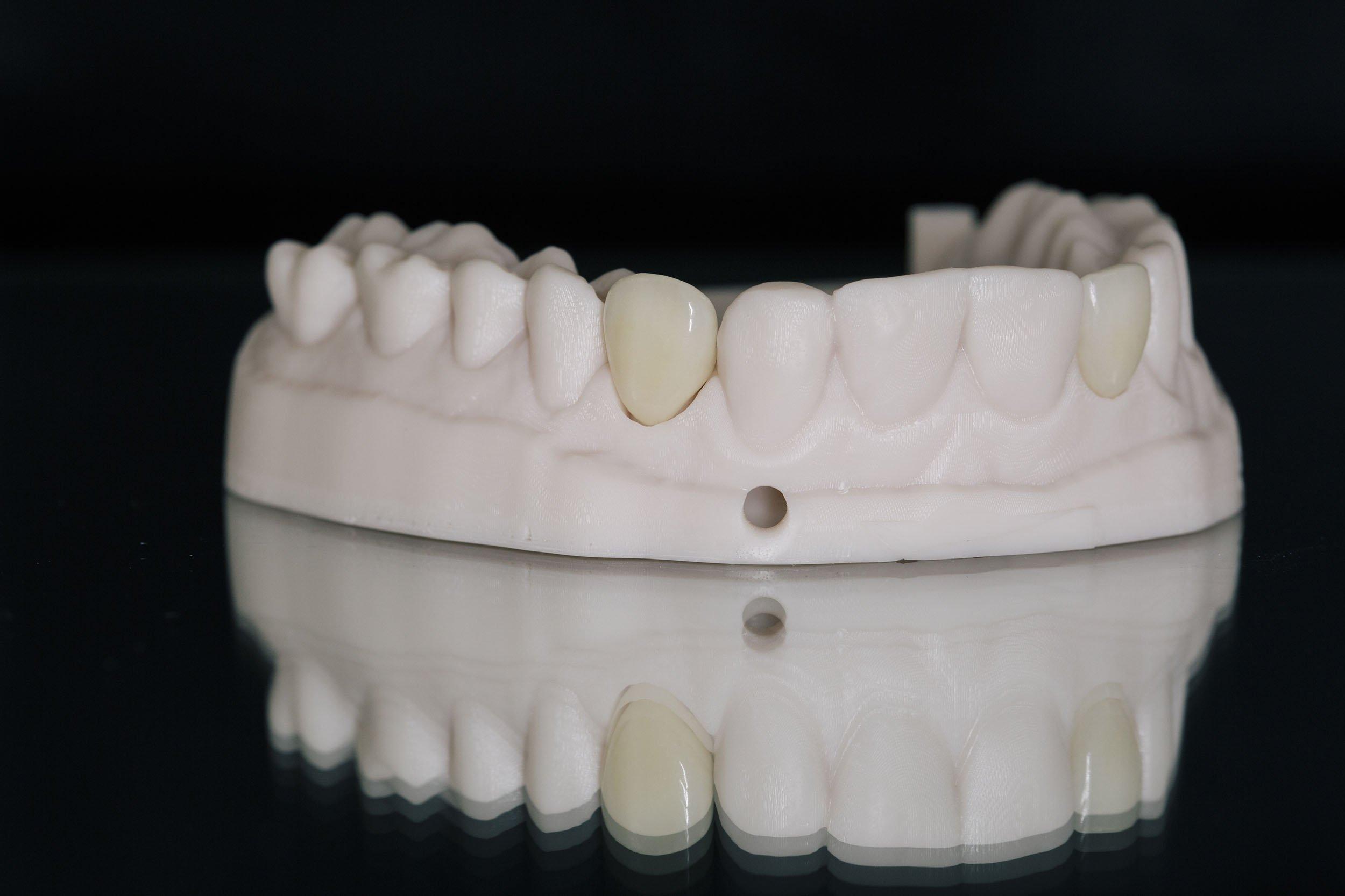 Teeth | Ismile