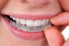 Orthodontics/invisalign - iSmile