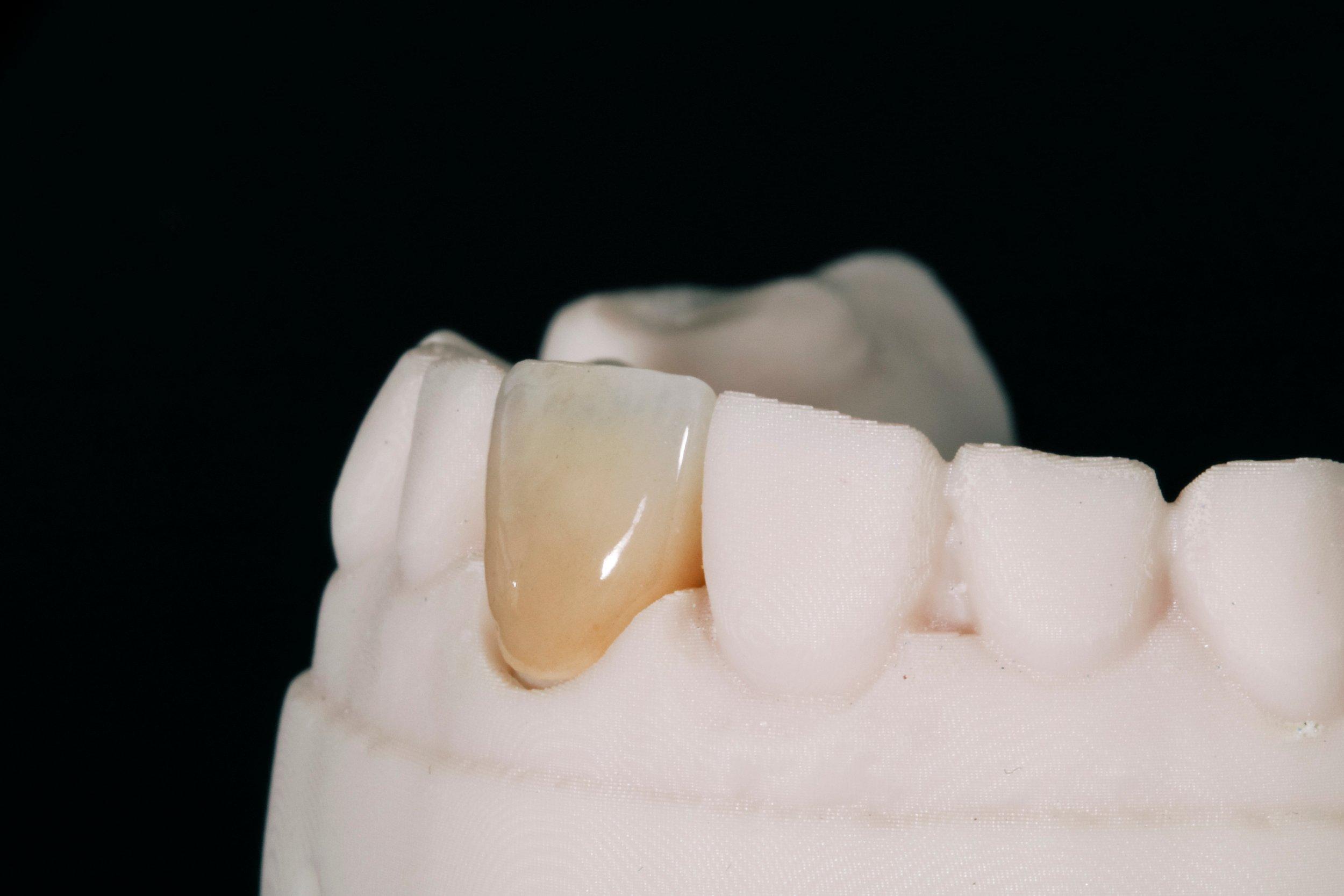 Teeth Problems | Ismile