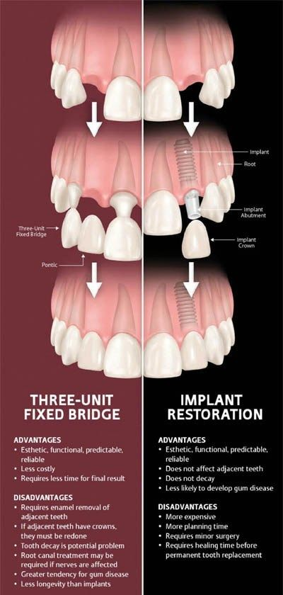 Implant-vs-Bridge-2_27ed9b35a39cfa75c0eba12ef9736eea