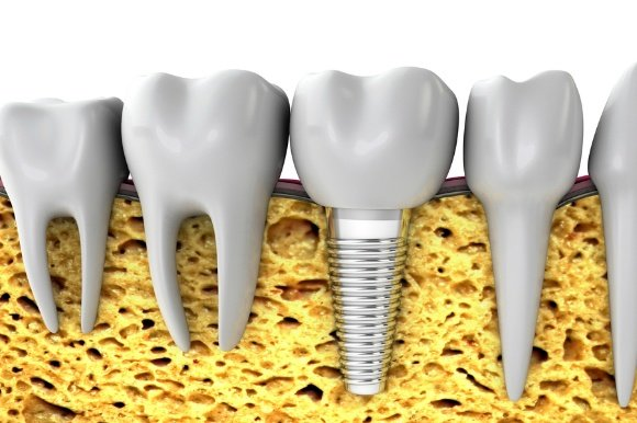 Ismile - Dental Implants