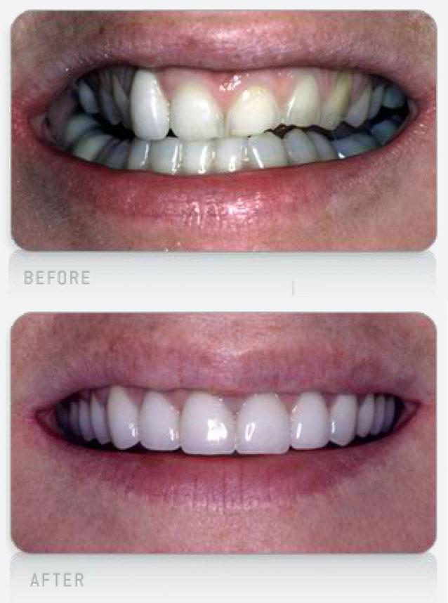 Misaligned-Teeth
