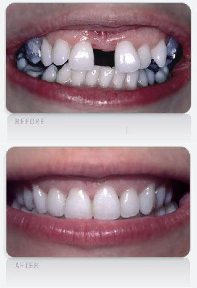 Spaced-Teeth