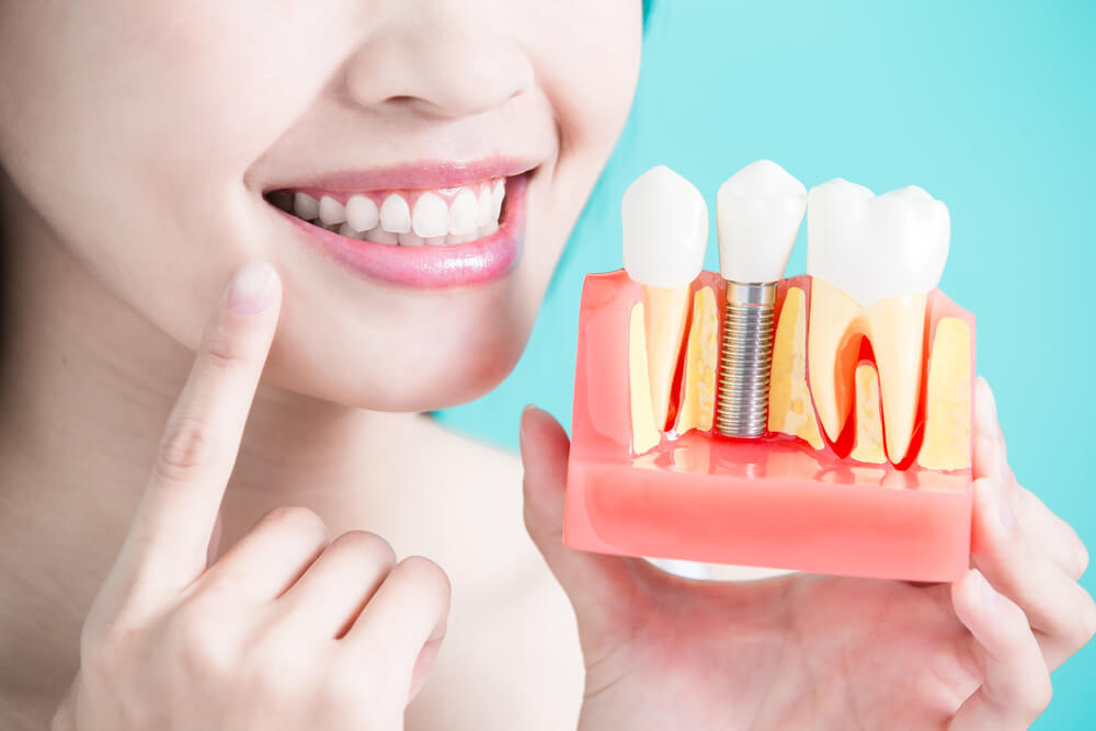 Stem Cell Dental Implants