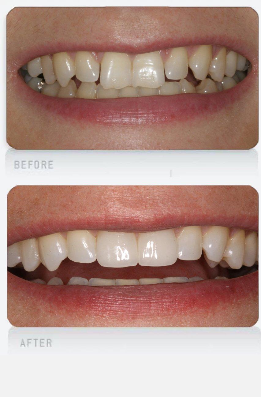 chipped teeth hub