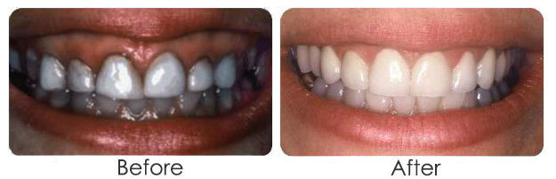 periodontal plastic surgery nyc