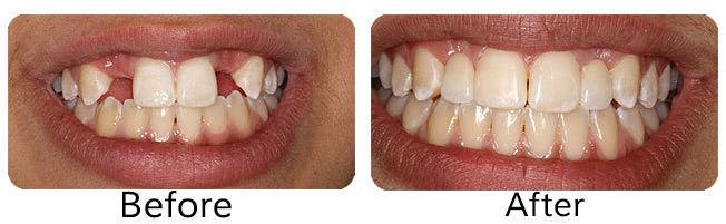 teethreplacements_63e041deab50e07a19f780f3fe3f556b