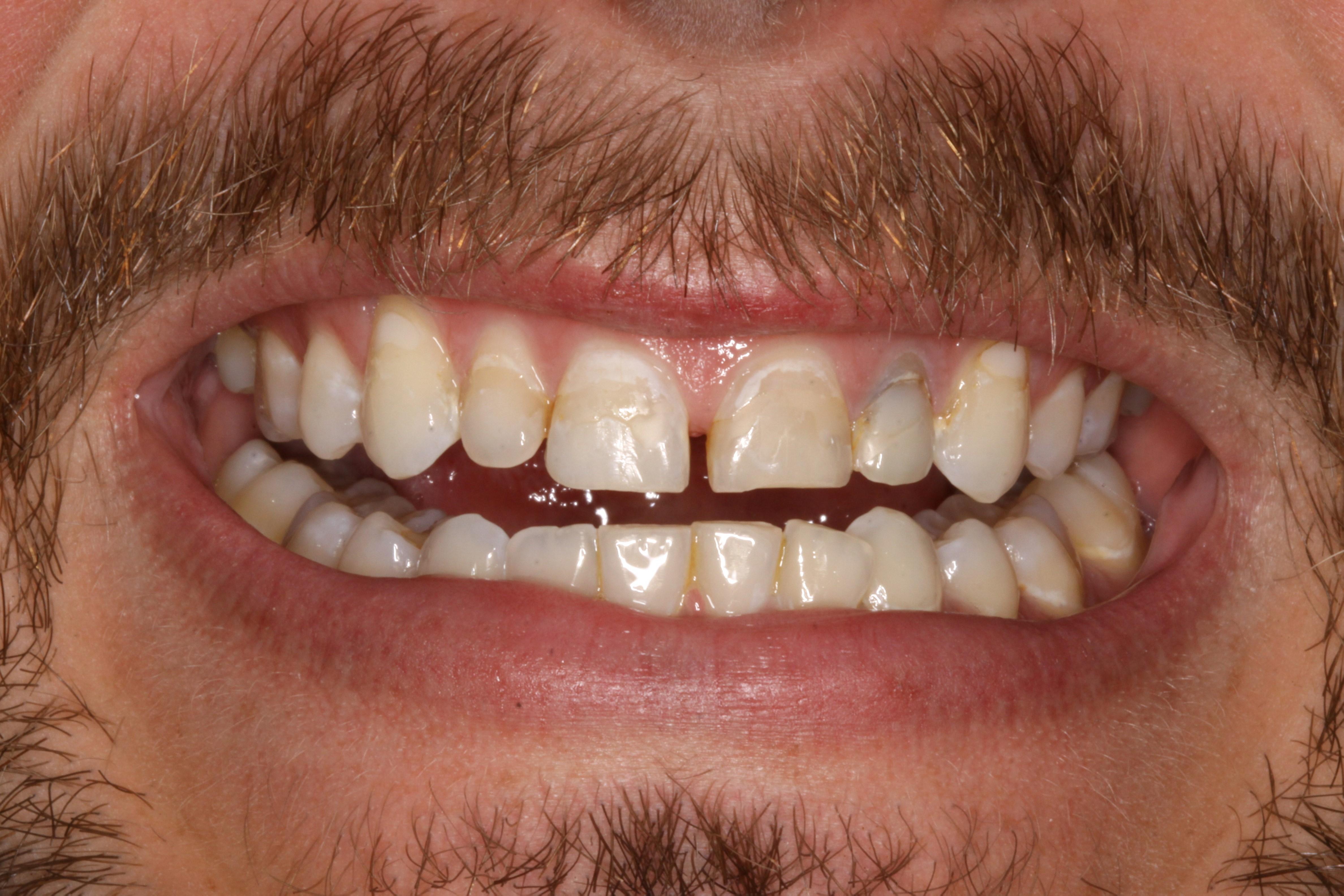 pre-op smile (1)