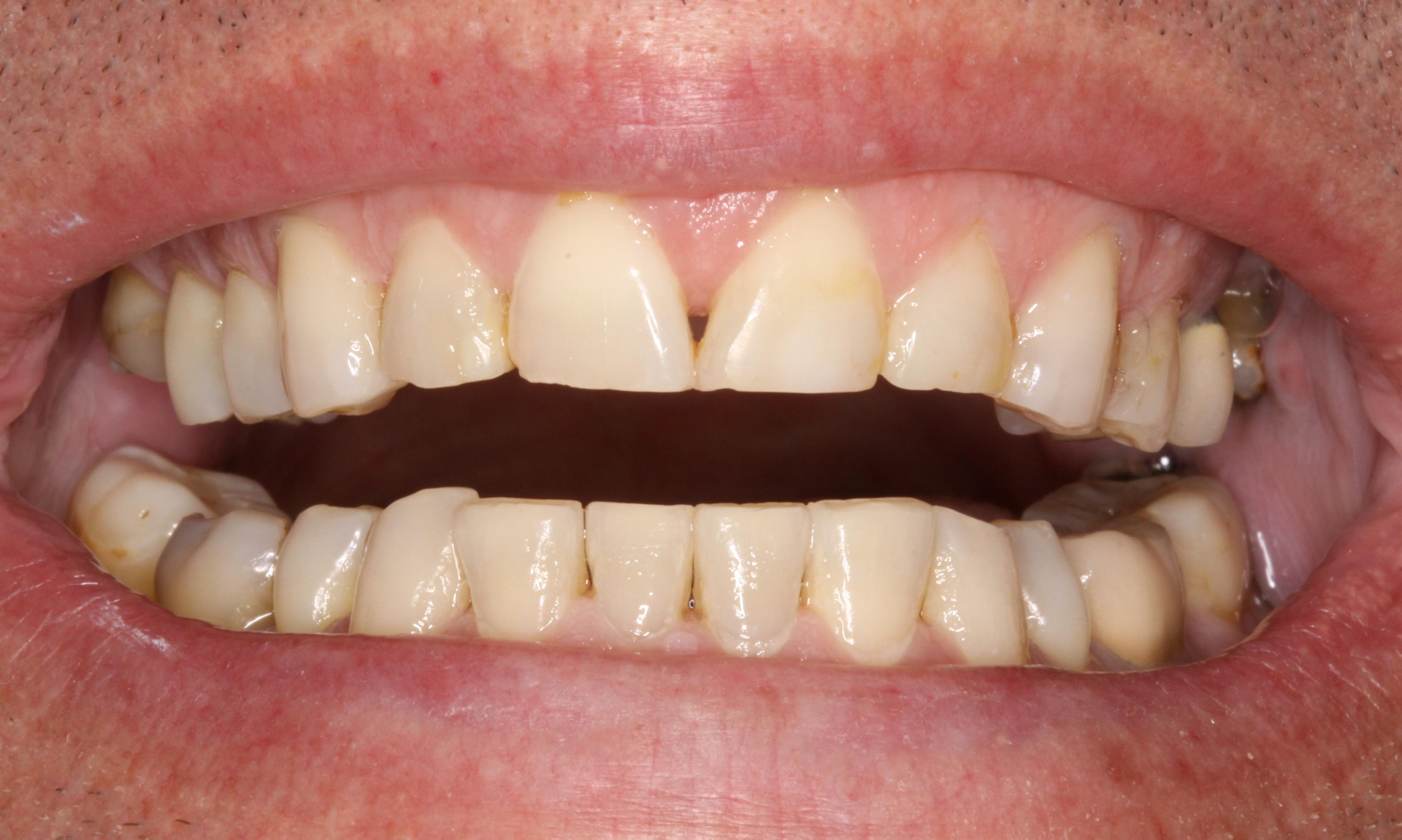 pre-op smile (3)