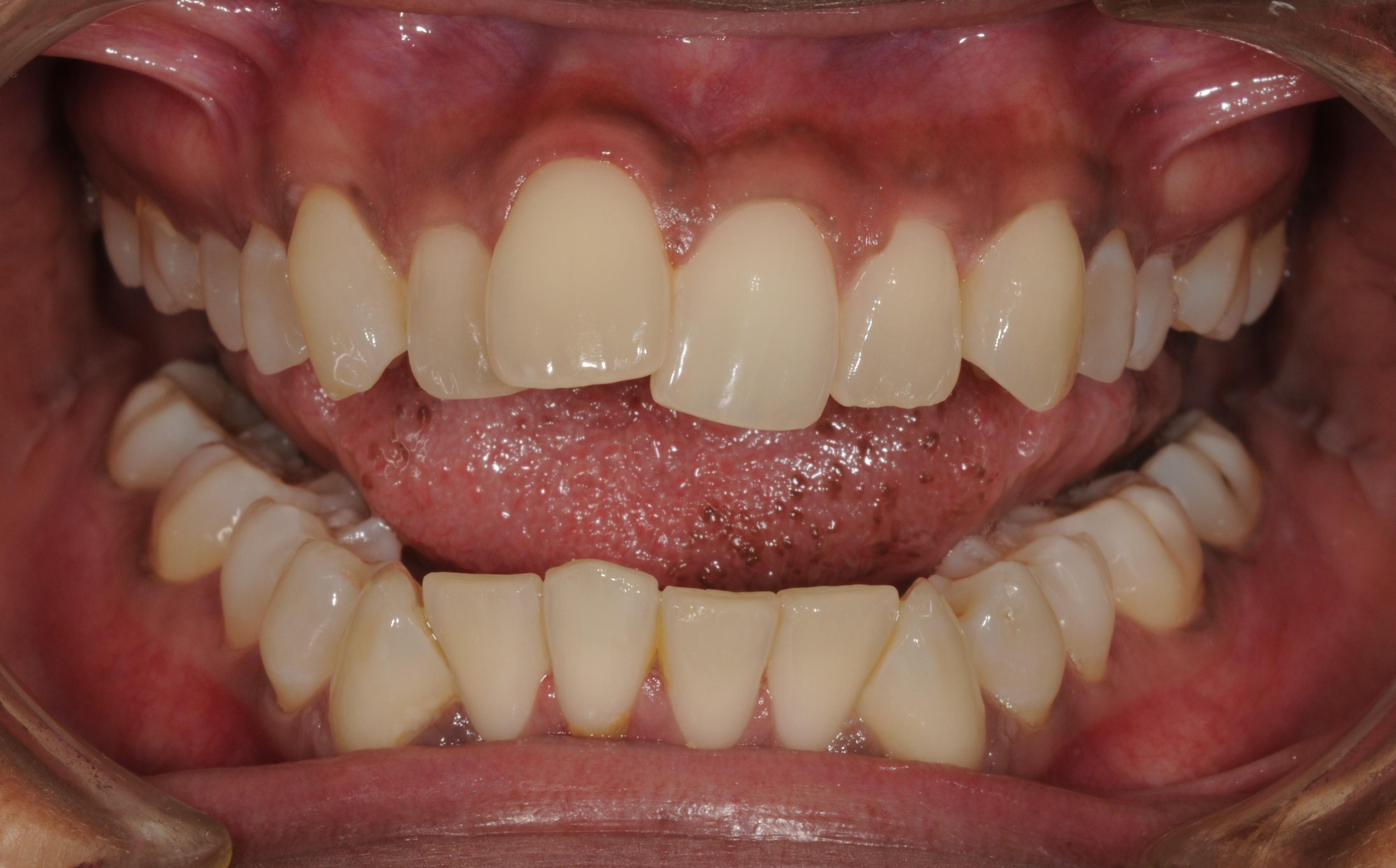 preop teeth-1