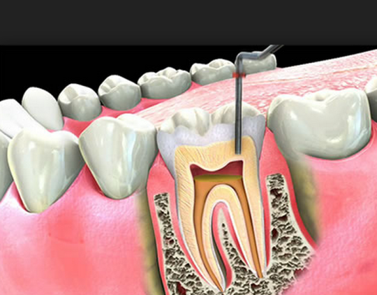 Tooth pain after root canal | ismile