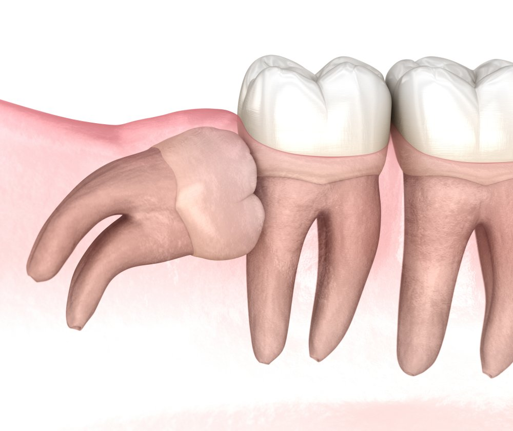 Wisdom Tooth Removal Surgery
