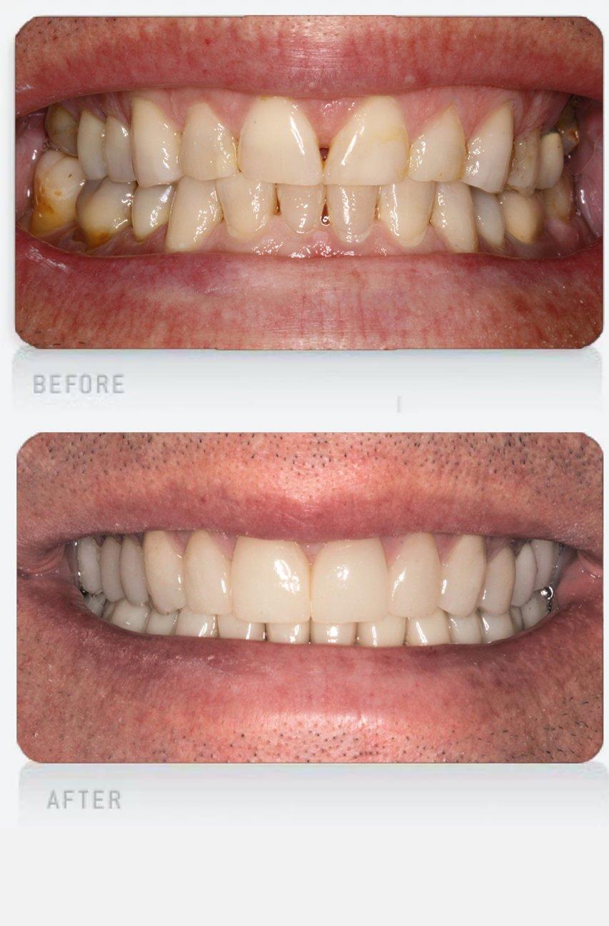 worn teeth hub